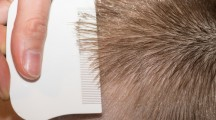 Searching for lice on a childs head with a white comb